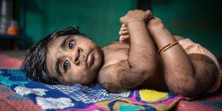 FOTO Marturia mamei unui baietel nascut cu sindromul varcolacului: