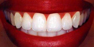 Cum ne albim dintii si cum ii pastram curati