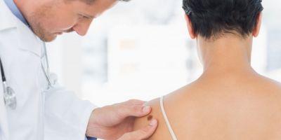 Cat de mare este pericolul tumorilor maligne din piele: