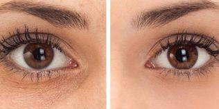 Remedii naturale care fac minuni in redarea stralucirii ochilor: cum estompam cearcanele si ridurile
